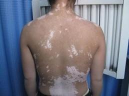 背部白癜风发病是什么引起的