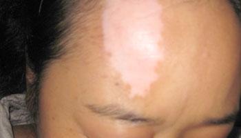 女性白癜风护理皮肤秘诀