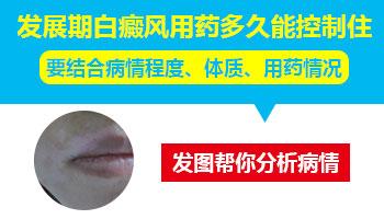 沧州白癜风医院治疗白癜风的仪器有哪些