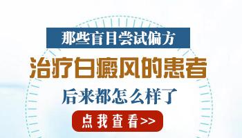 沧州白癜风医院治疗比较好的是哪家